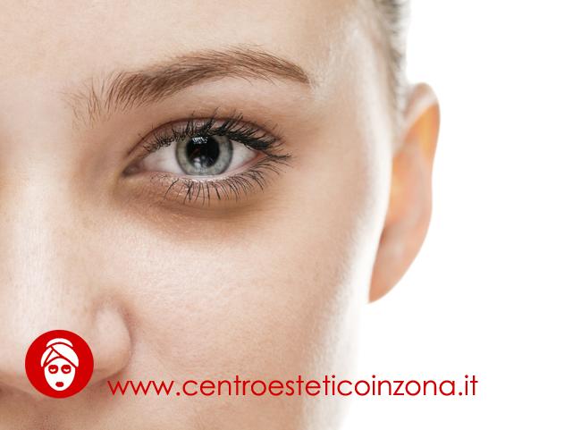 Come eliminare le occhiaie in modo naturale?