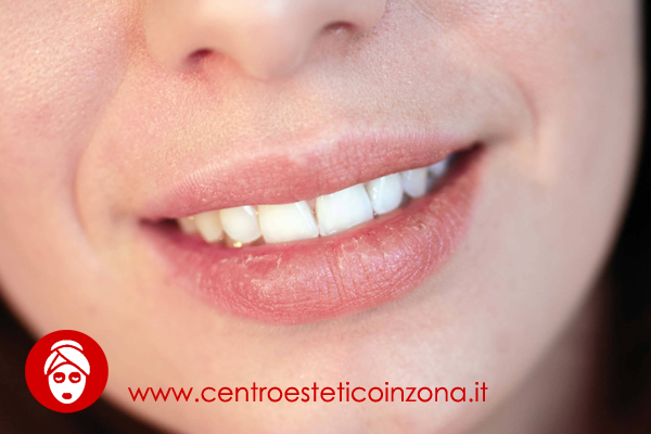 Labbra screpolate e secche cause e rimedi naturali